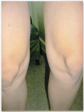 an image of a woman's knees standing in an interior space.